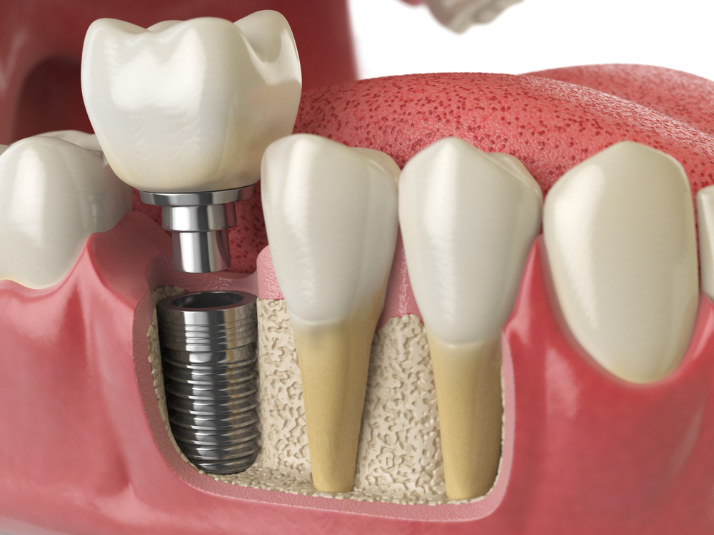dental implant in Rochester